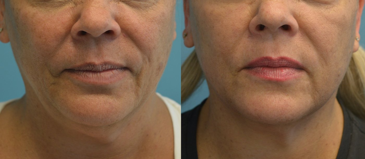 Facetite liposuction and morpheus of neck and jowls one month after front view