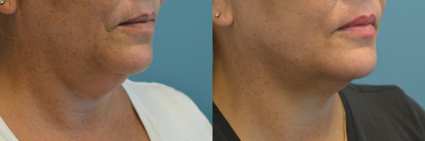 Facetite liposuction and morpheus of neck and jowls one month after oblique view