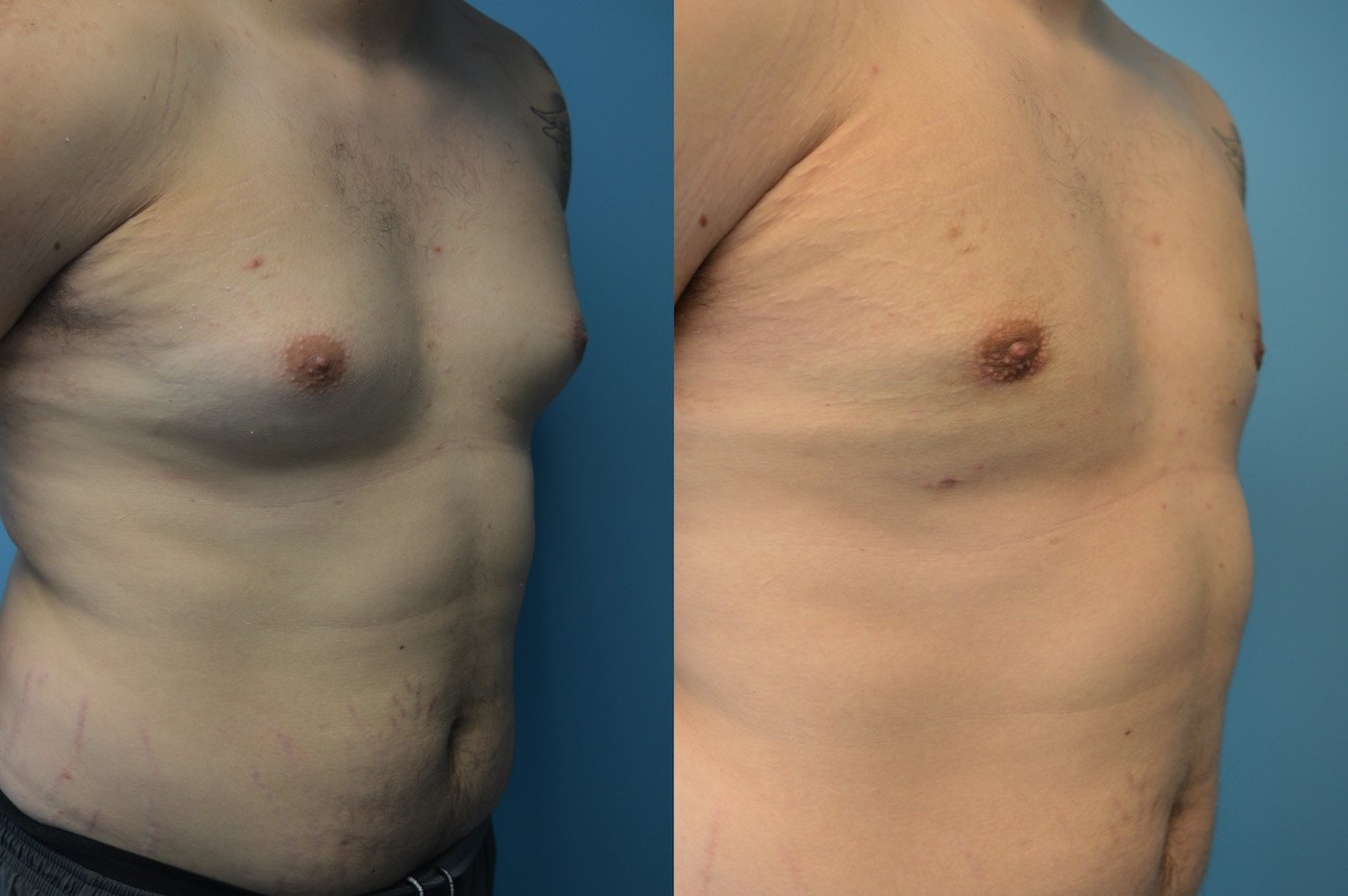 Gynecomastia 2 months after surgery excision liposuction oblique