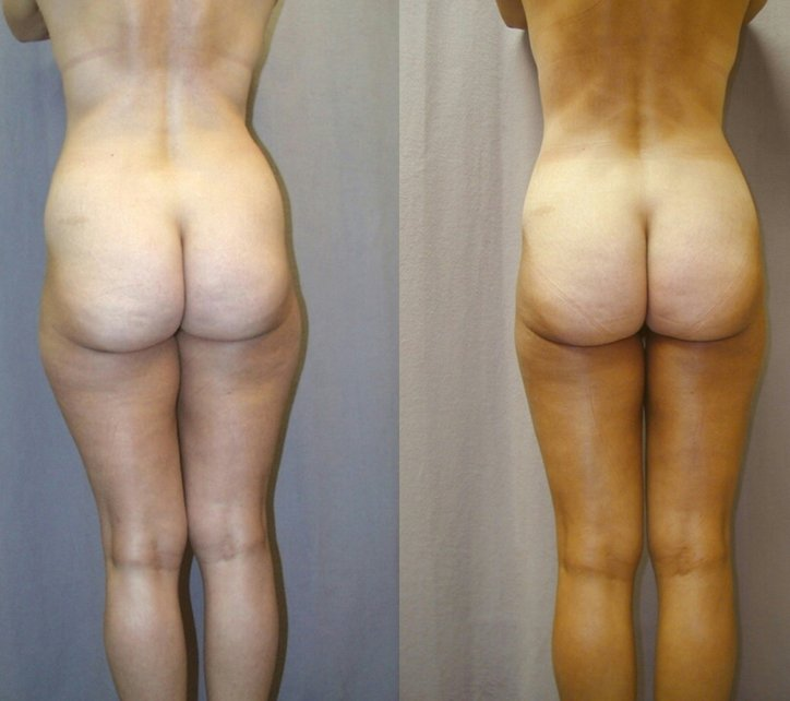 Lipo hips and thighs