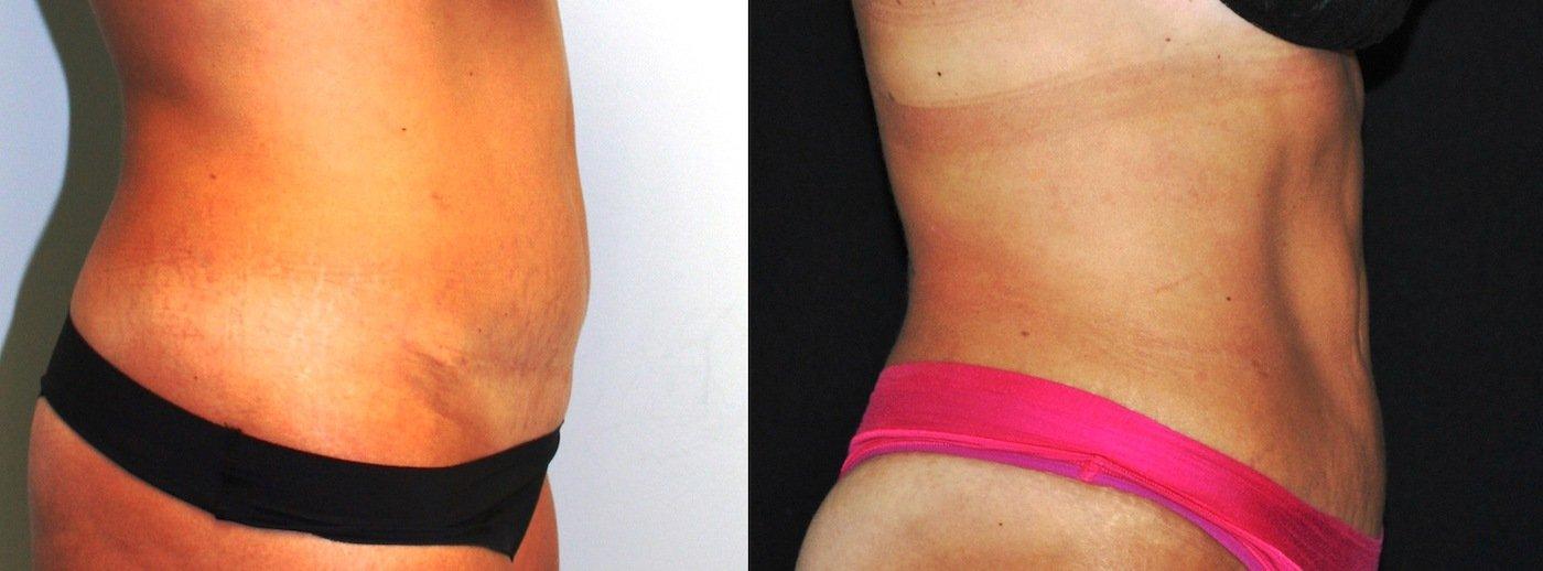 Liposuction Iliac Crests and Abdomen