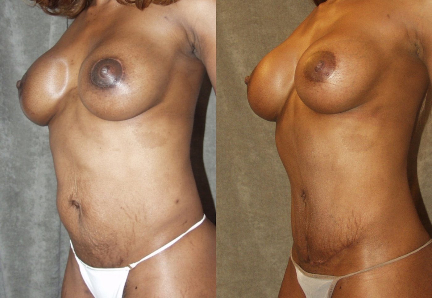 Mommy Makeover,  43-years-old, 11  years after breast SAMBA _ 5 years after abdominoplasty, oblique view.