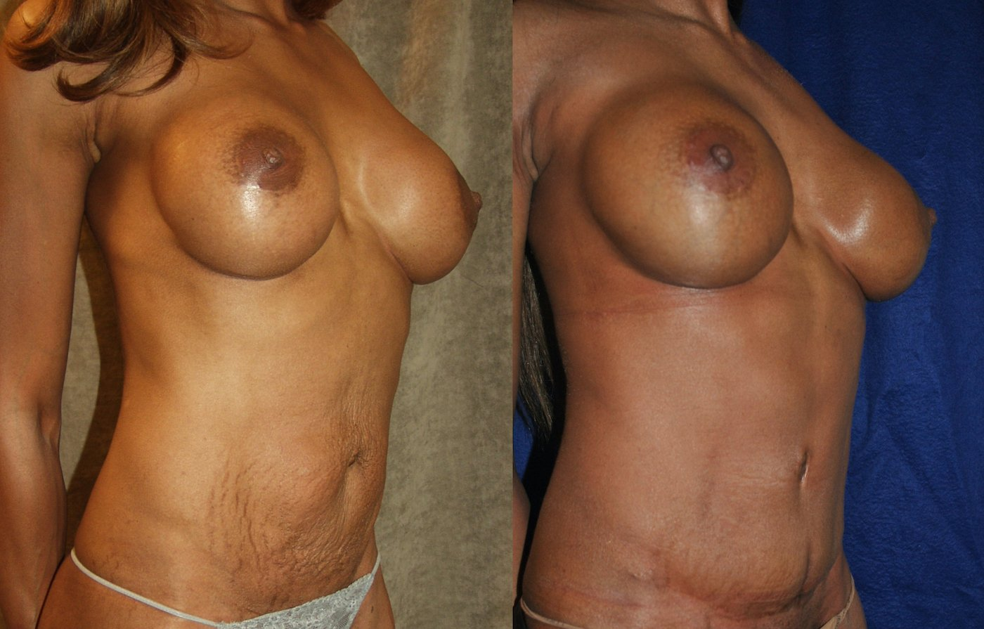 Mommy Makeover, 43-years-old, 11  years after breast SAMBA _ 5 years after abdominoplasty, right oblique view.