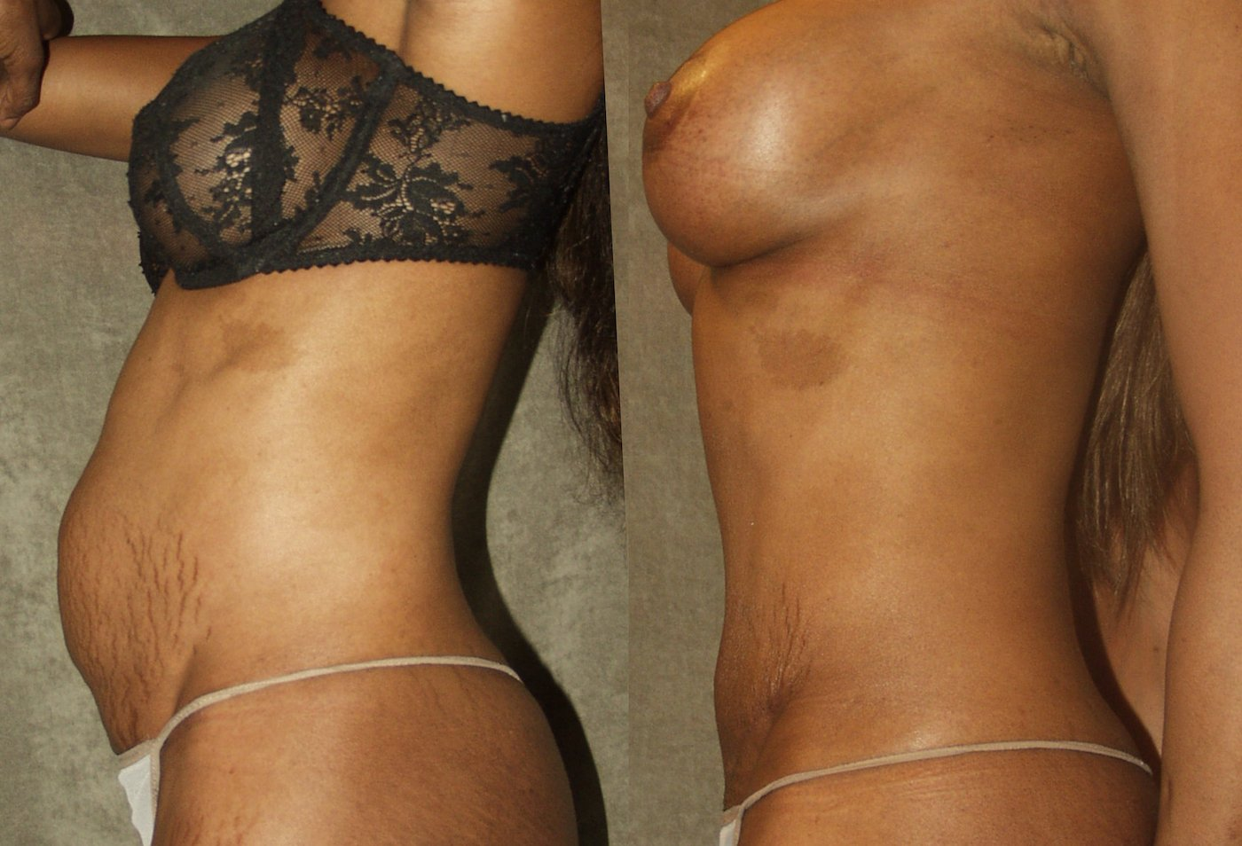 Mommy Makeover, 43-years-old, 11  years after breast SAMBA _ 5 years after abdominoplasty, side view.
