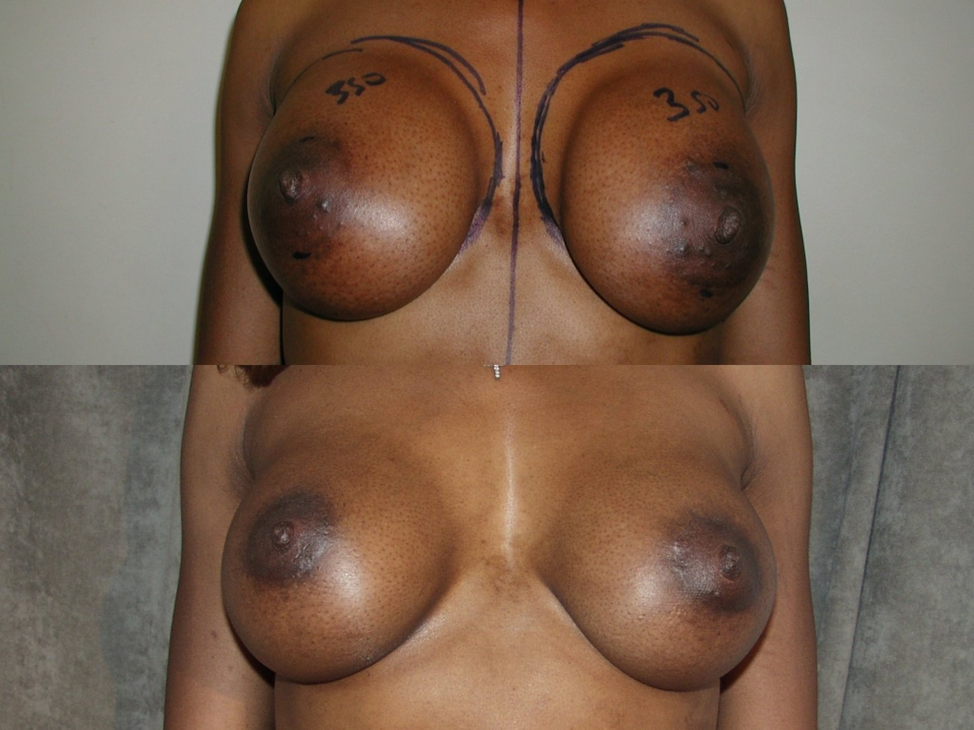 Mommy Makeover, 43-years-old, 11  years after breast SAMBA, implants moved from in front of muscle to behind pectoralis major,  front view.