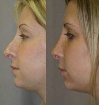 Revision rhinoplasty side view