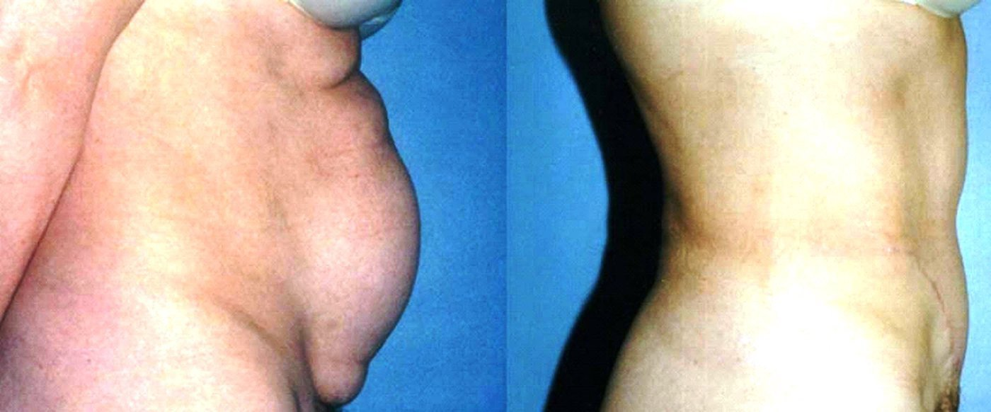 Standard abdominoplasty with handle-bar incision and liposuction of hips and thighs, side view