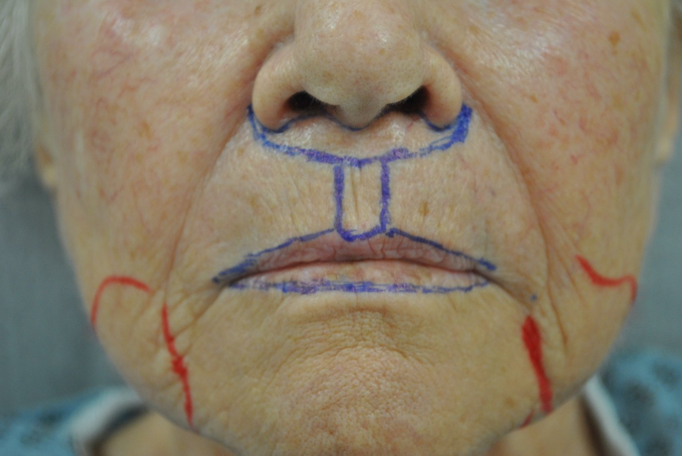 Surgical planning upper lip shortening, fat injection, peri-oral peel, liposuction of jowls