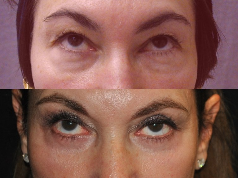 Upper and lower eyelids 16 years later