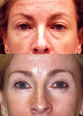 Upper Lower Eyelids