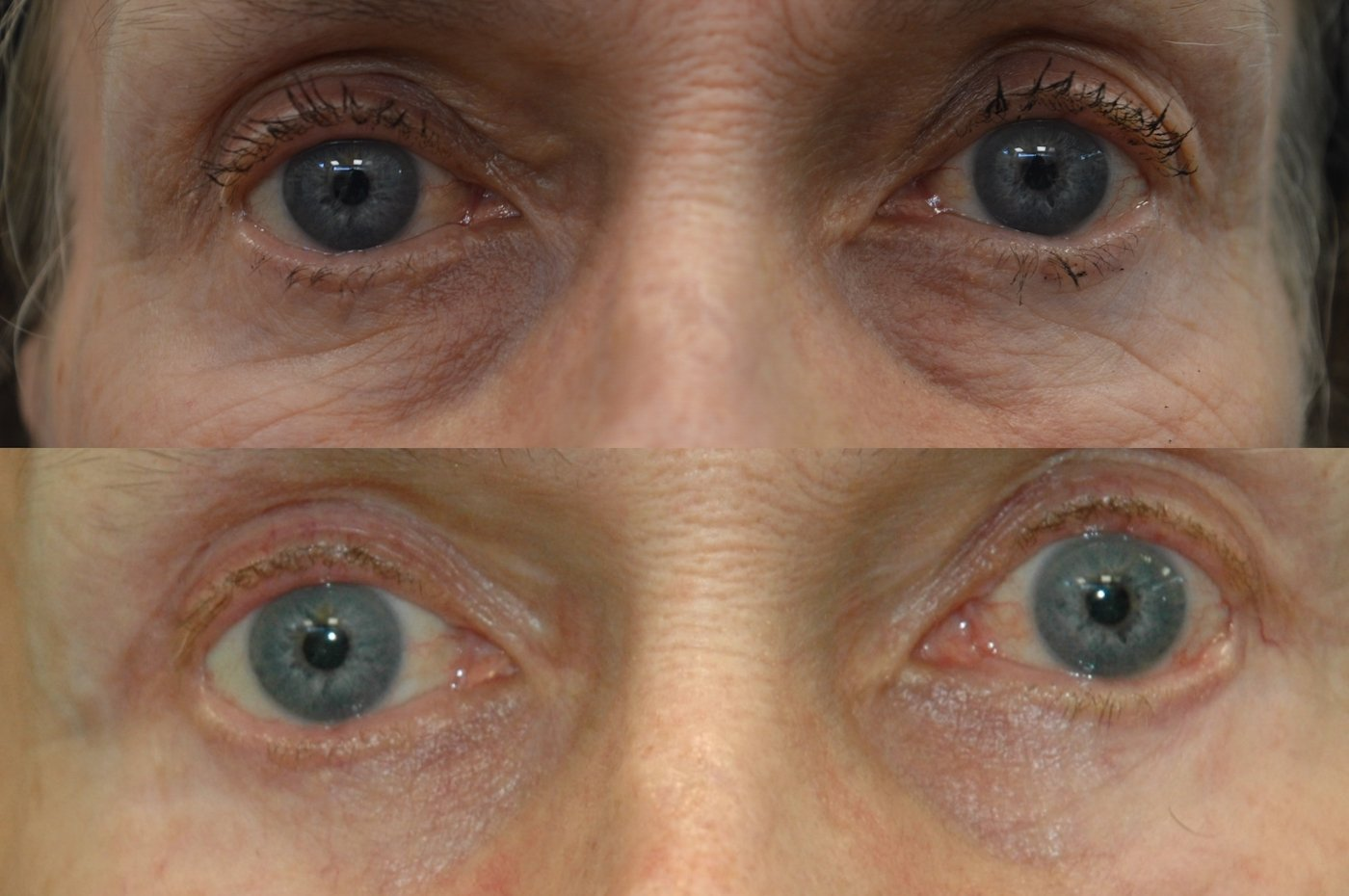 Upper and Lower Blepharoplasty 8 months after