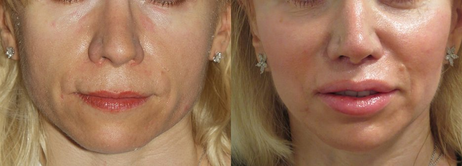 Upper lip shortening, nasal tip plasty and chin implant, front view