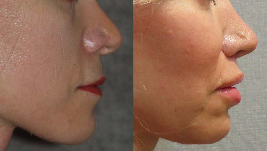 Upper lip shortening, nasal tip plasty and chin implant side view