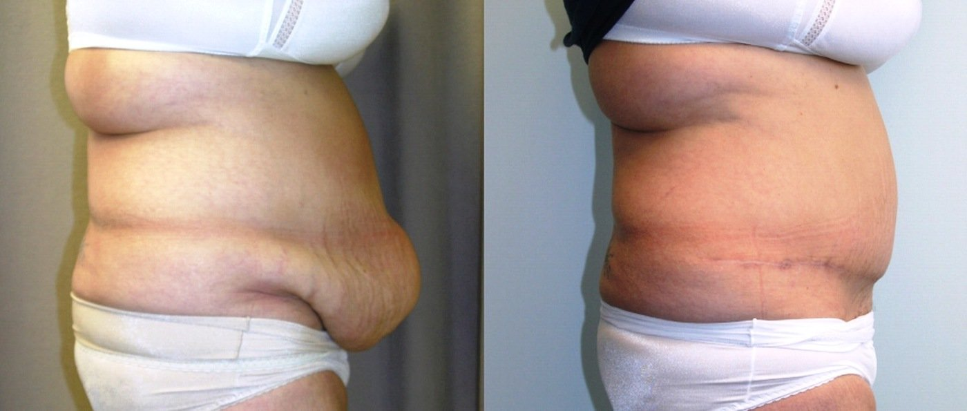 Abdominoplasty apronectomy side view