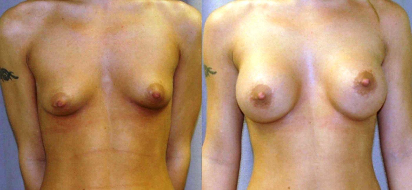 Breast augmentation 300 cc saline spectrum, front view
