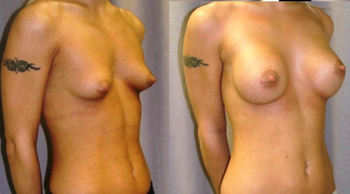 Breast augmentation 300 cc saline spectrum, oblique view