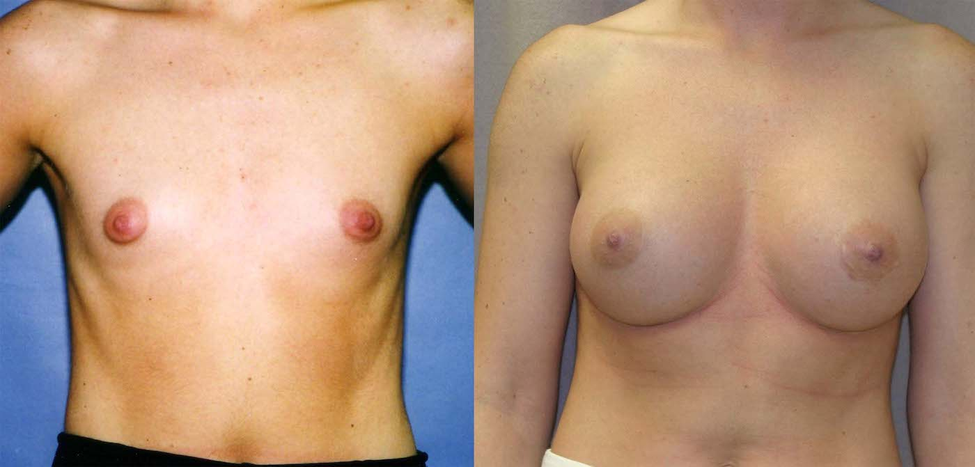 Breast augmentation 450 cc style 20 silicone gel, one year follow-up front view