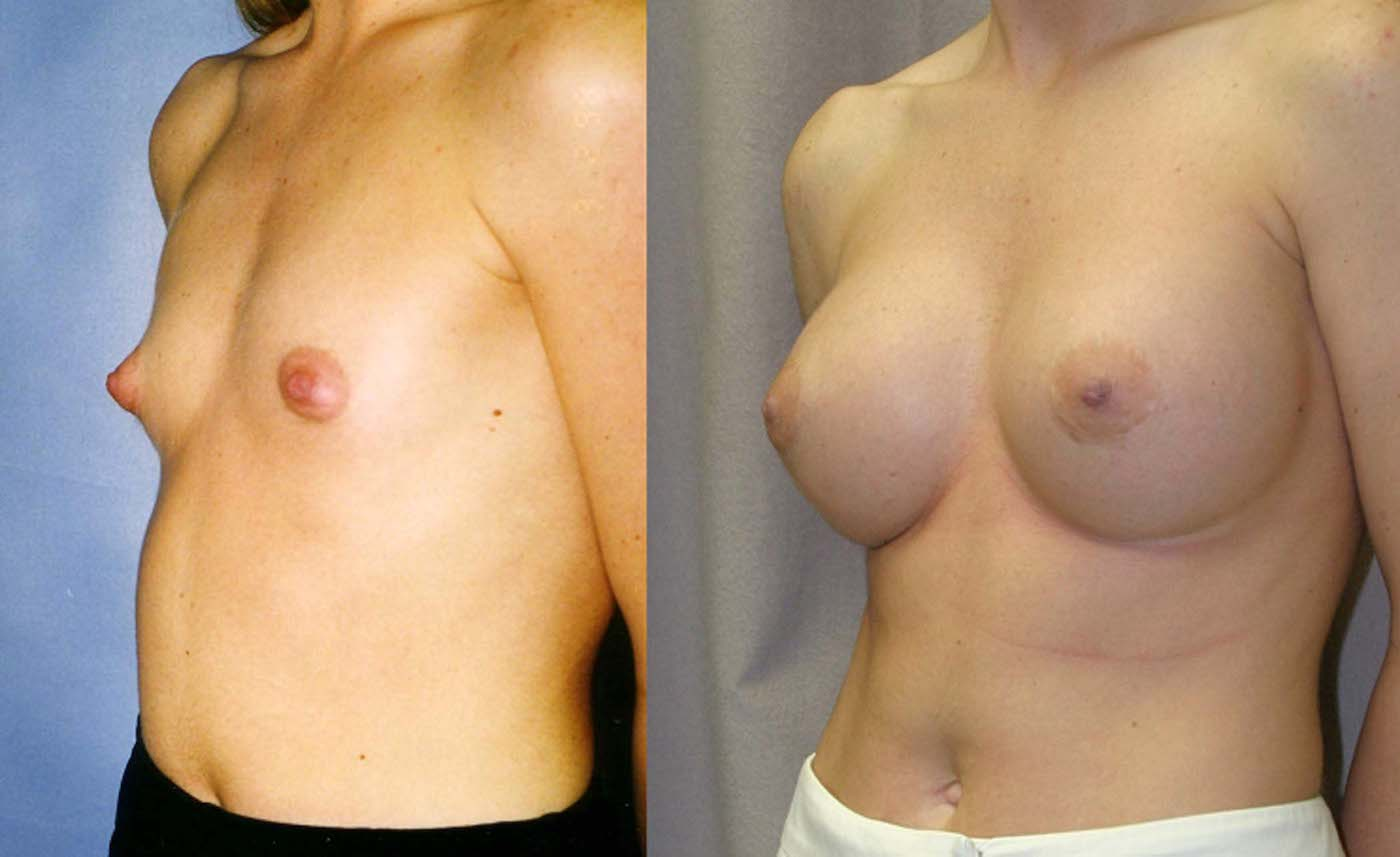 Breast augmentation 450 cc style 20 silicone gel, one year follow-up oblique view