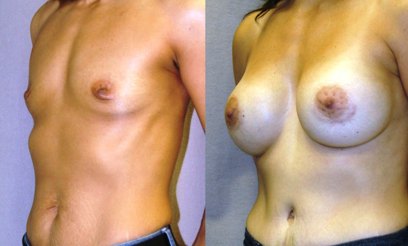 Breast augmentation oblique view