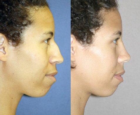 Ethnic rhinoplasty side view