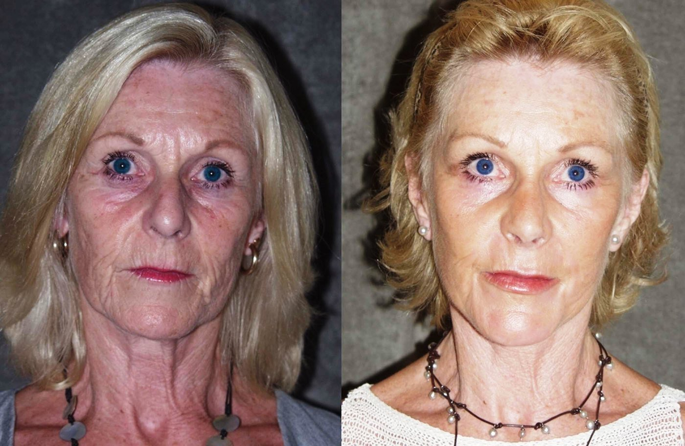 Facelift endoscopic browlift chin implant rhinoplasty front view