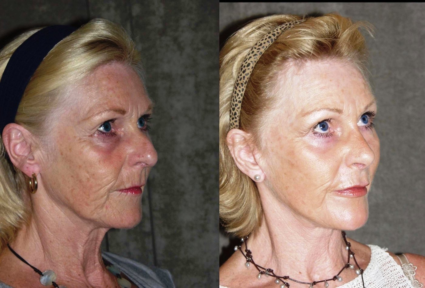 Facelift endoscopic browlift chin implant rhinoplasty oblique view