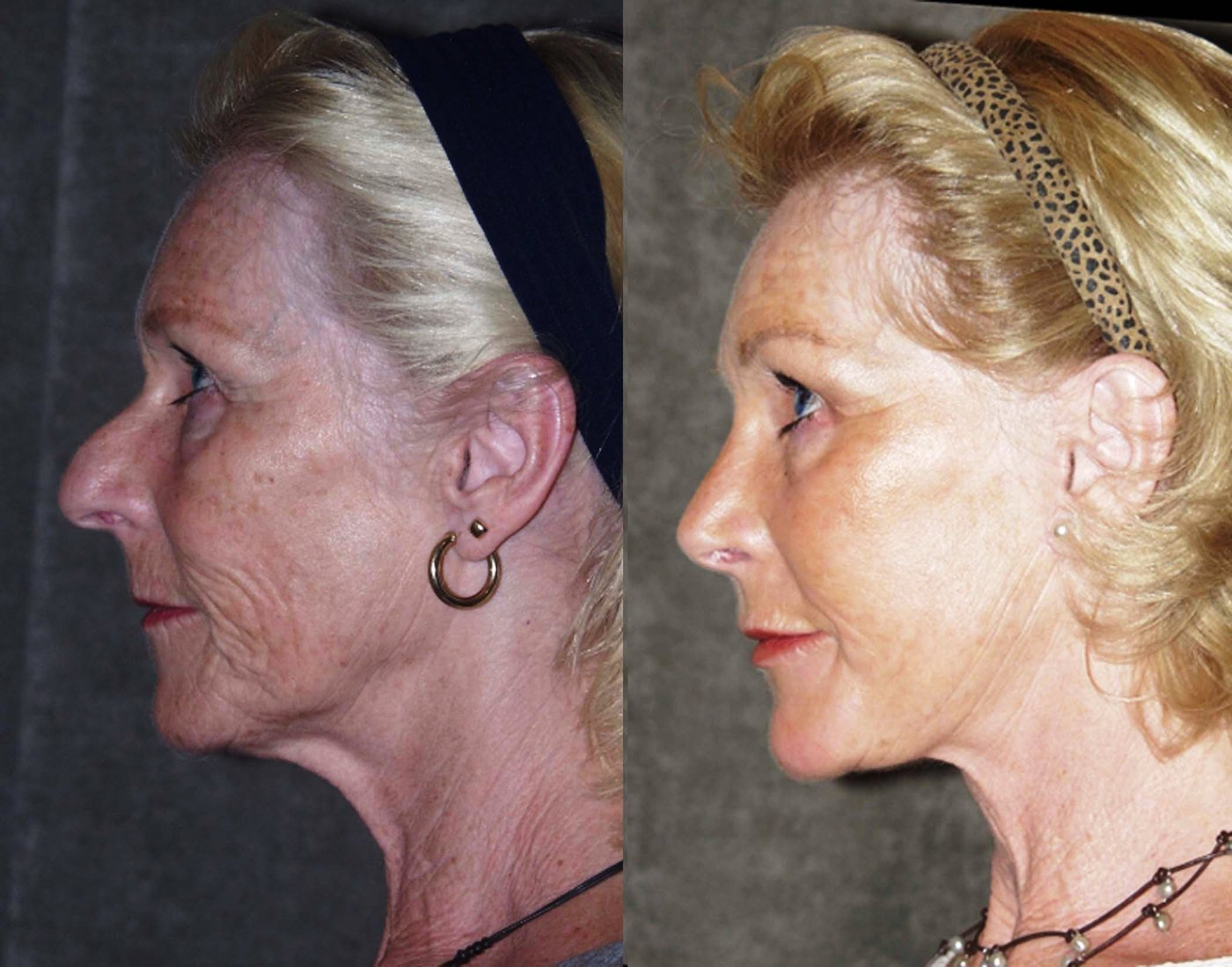 Facelift endoscopic browlift chin implant rhinoplasty side view