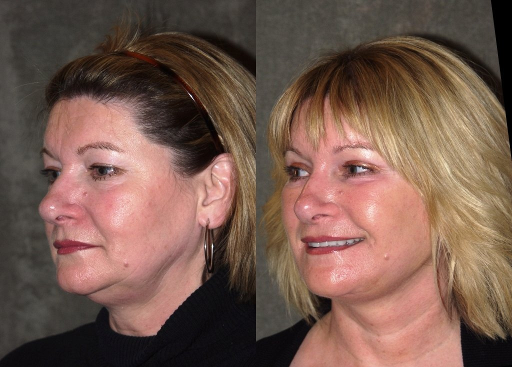 Facelift with upper and lower blepharoplasty 40 years old oblique view