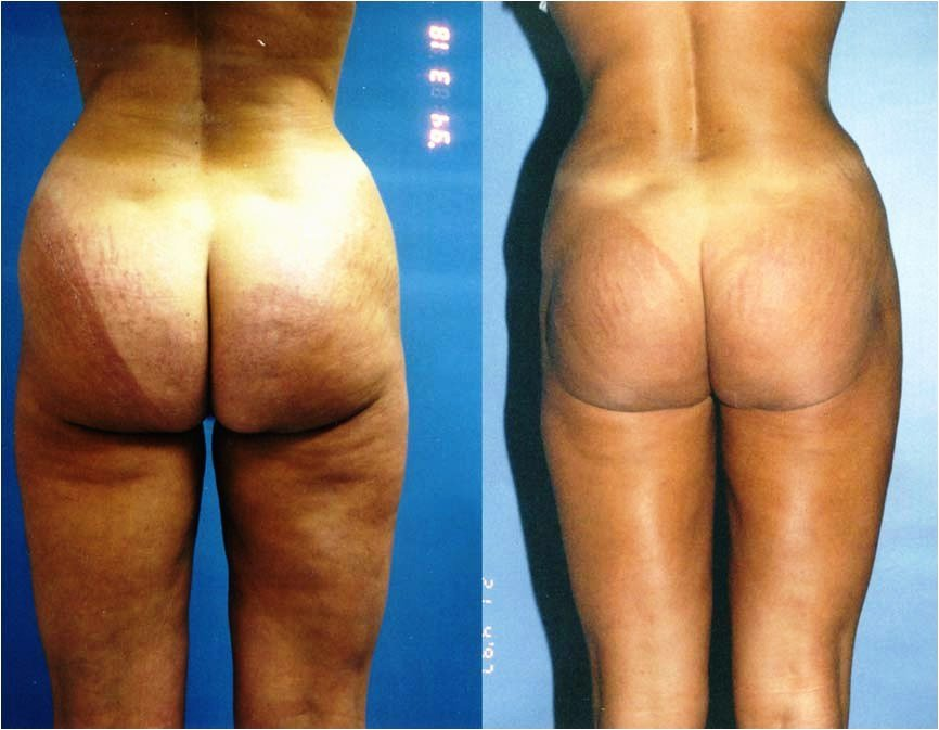 Liposuction outer thighs, inner thighs, posterior thighs, iliac crests (hips)
