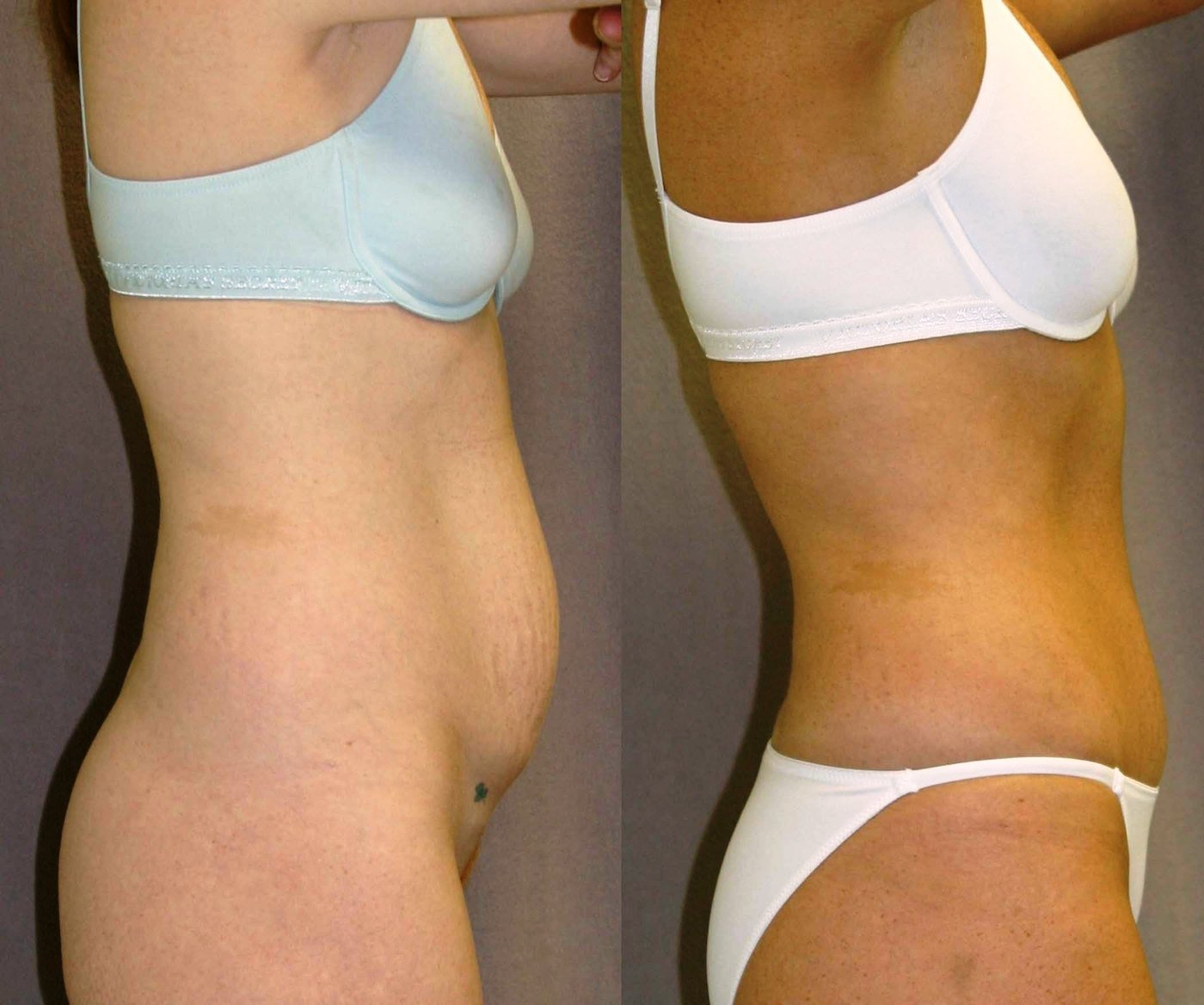 Modified short scar abdominoplasty one year, side view