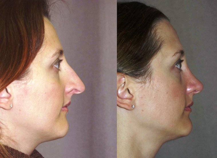 This patient had an internal graft to the nostril rim to correct the indentation. Lateral View.
