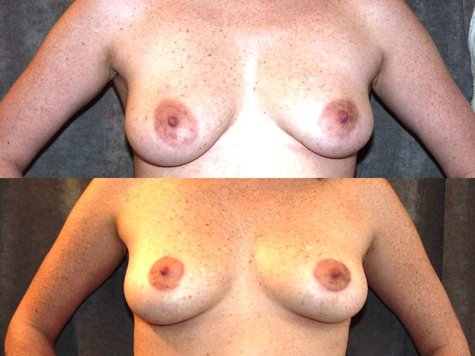 Peri-areolar mastopexy only, front