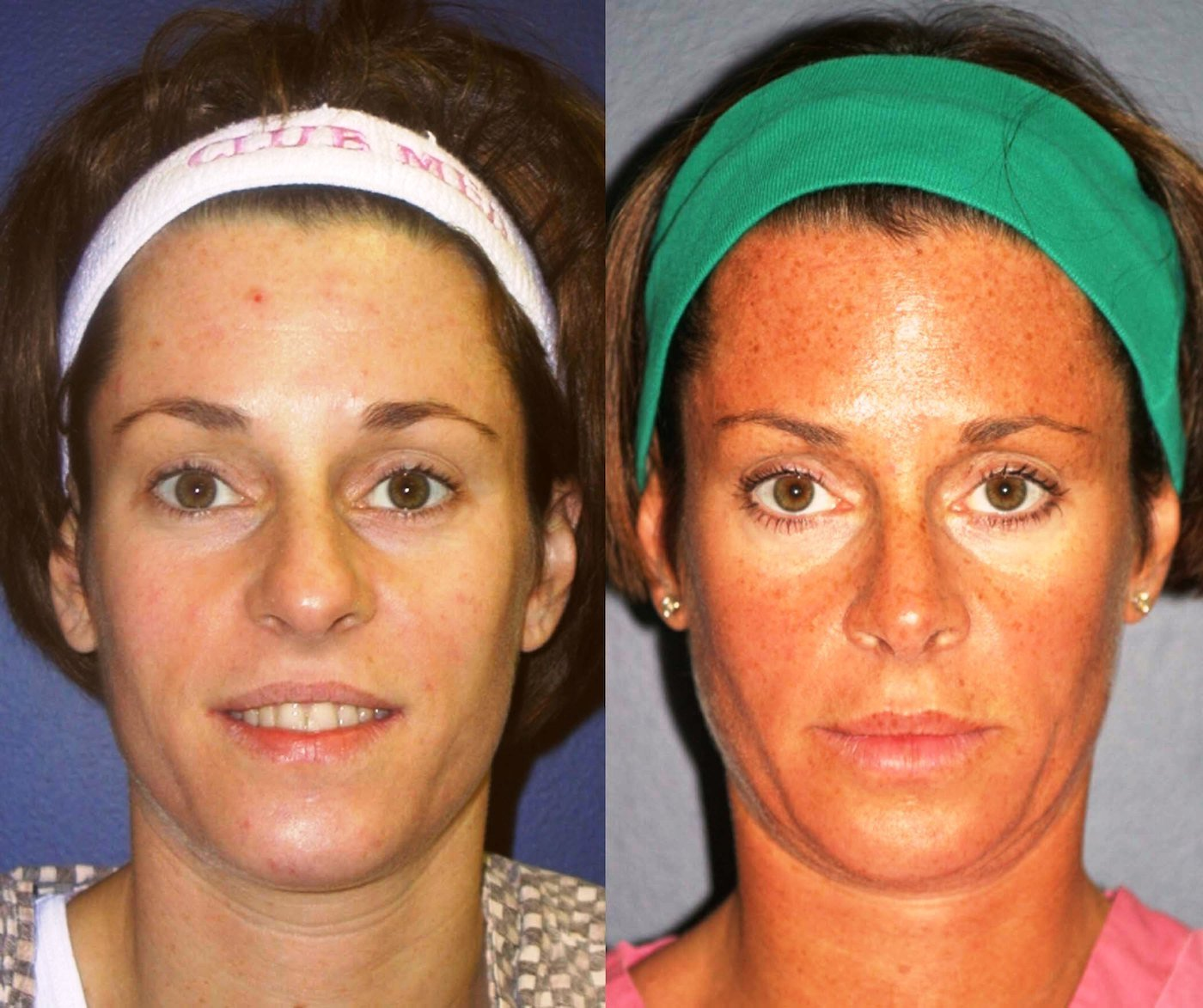 Rhinoplasty 8 year follow-up front view