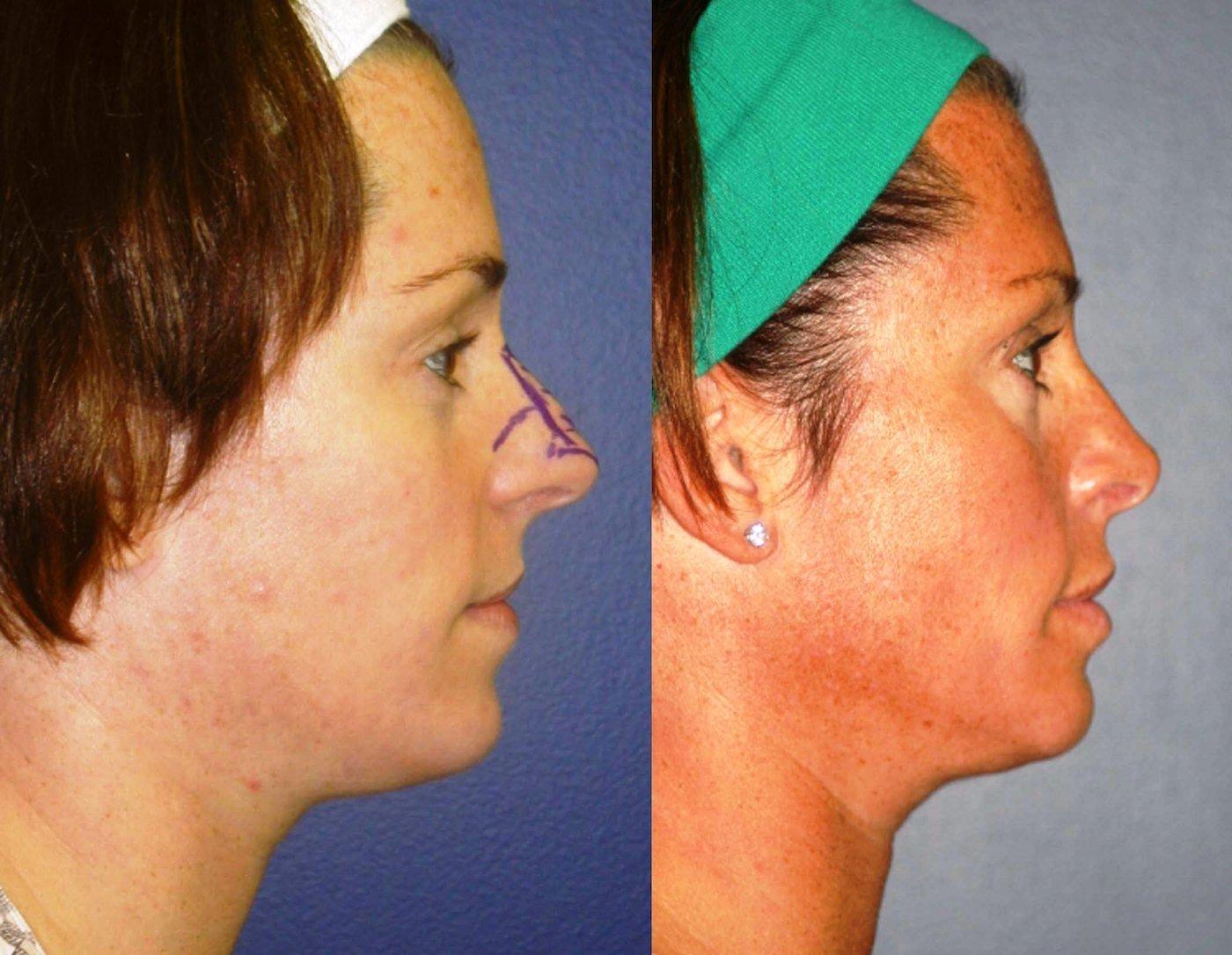 Rhinoplasty 8 year follow-up side view