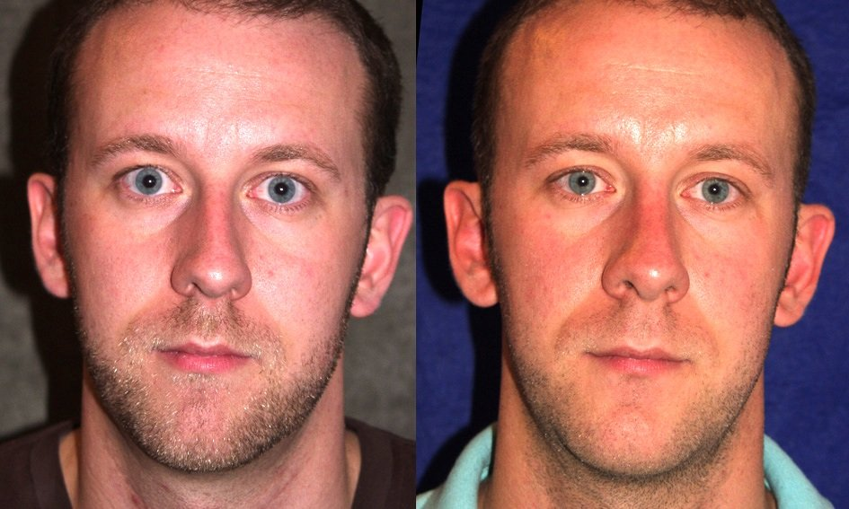 rhinoplasty and chin implant one year after surgery, front view