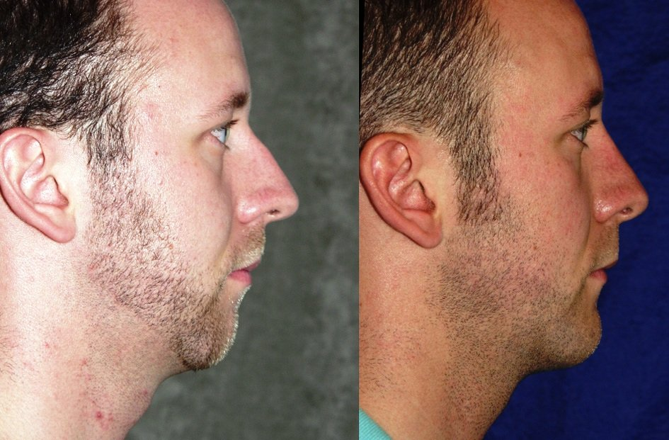 rhinoplasty and chin implant one year after surgery, profile