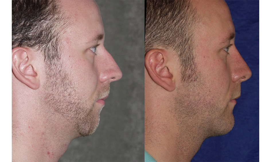 Rhinoplasty and chin implant one year after surgery side view