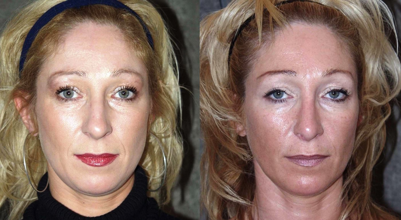 Rhinoplasty before and 16 months after, front view