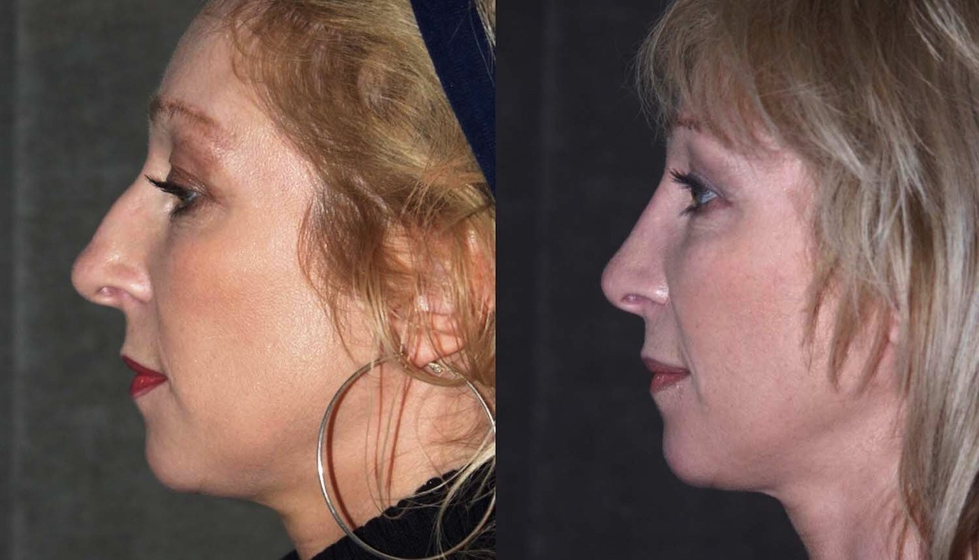 Rhinoplasty before and 16 months after, side view