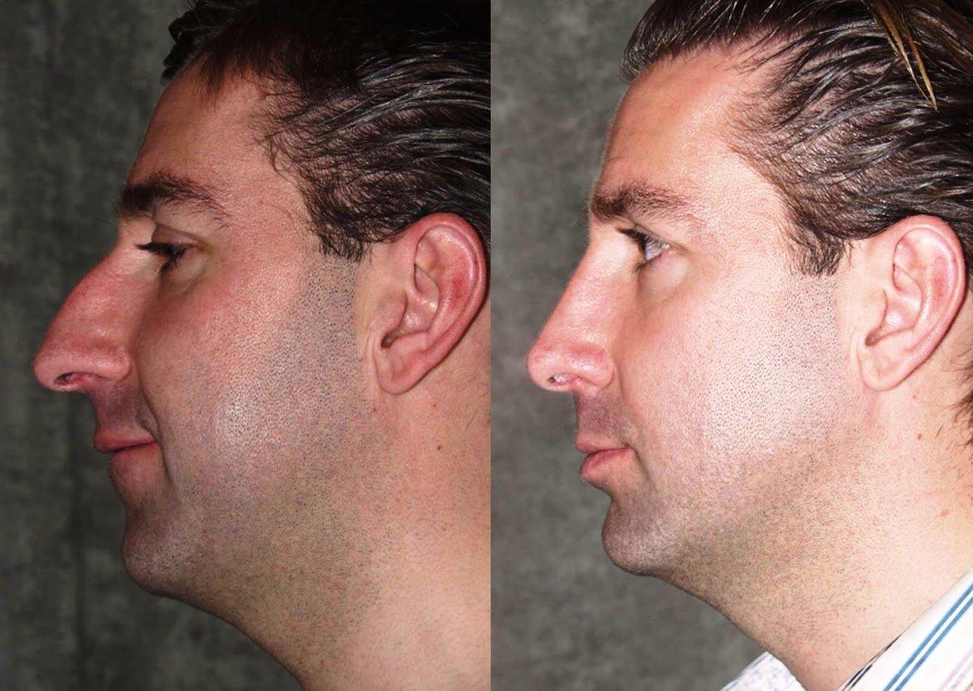Rhinoplasty one year follow-up side view