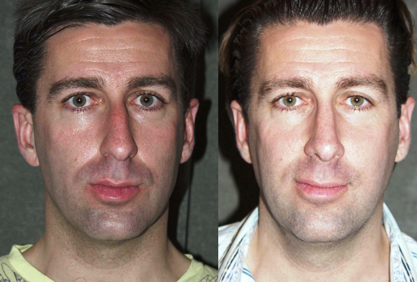 Rhinoplasty one year follow-up front view