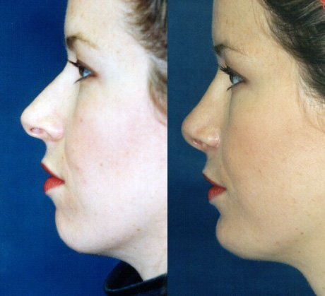 Rhinoplasty with chin implant side view