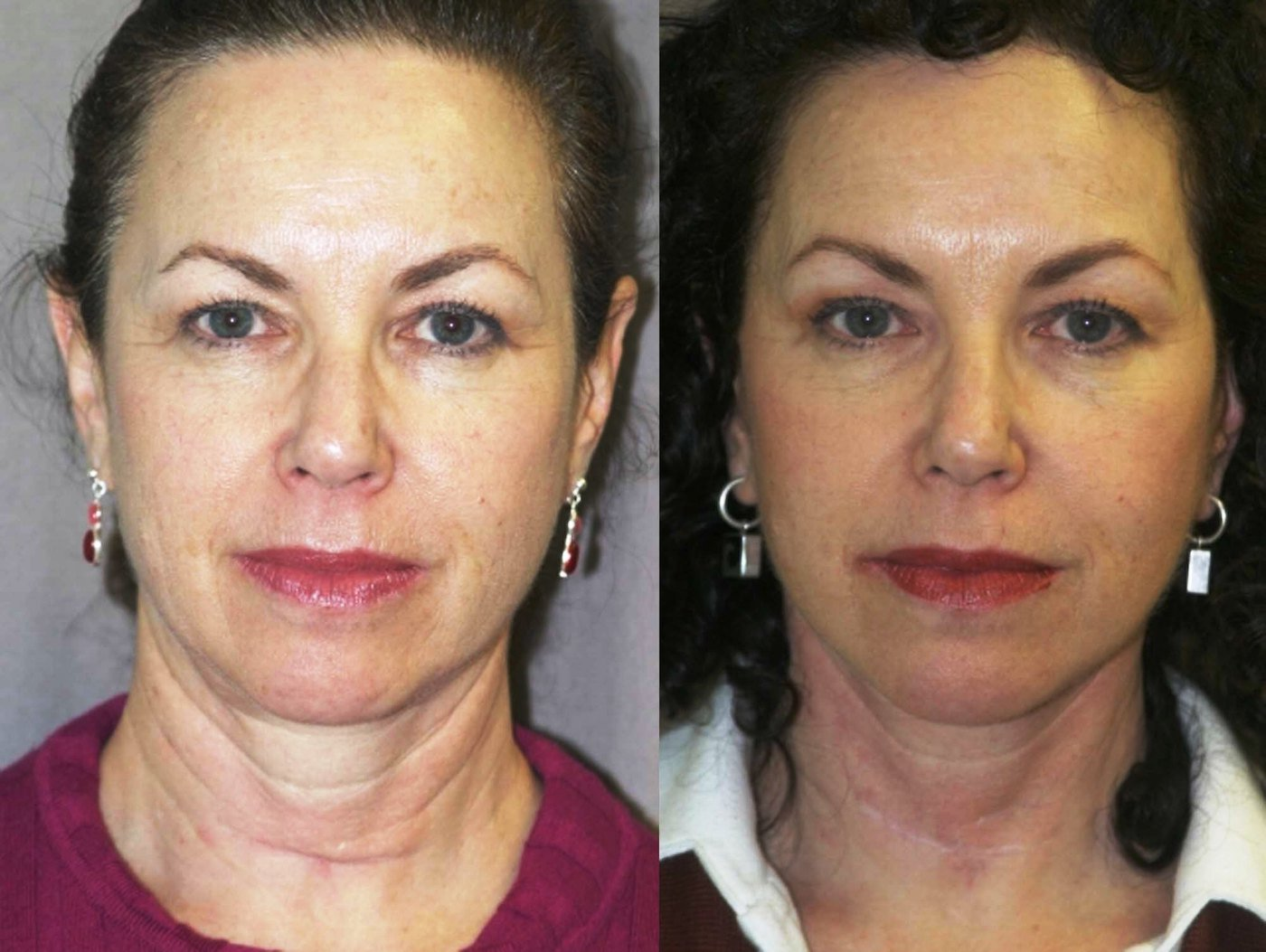 Short scar facelift with correction of thyroidectomy scar in lower neck, front view