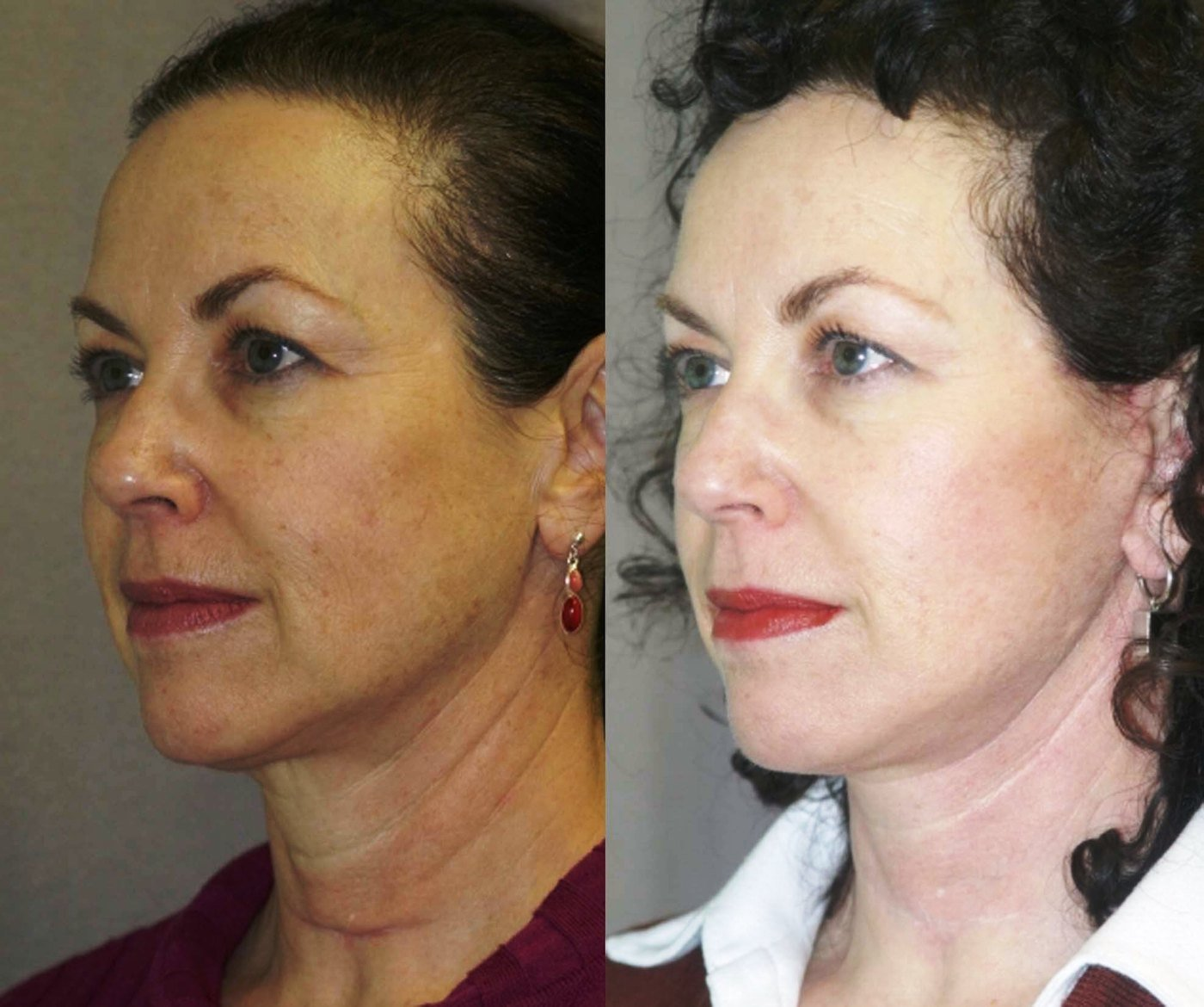 Short scar facelift with correction of thyroidectomy scar in lower neck, oblique view