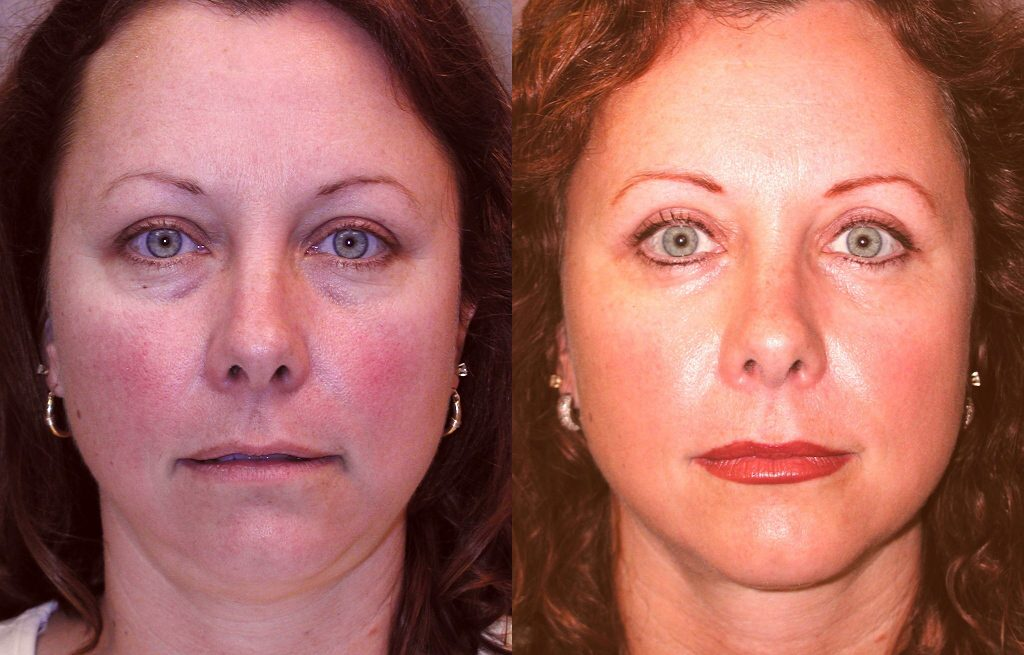 1.40-year-old-6-weeks-after-upper-and-lower-blepharoplasty-and-liposuction-submental-1024x654