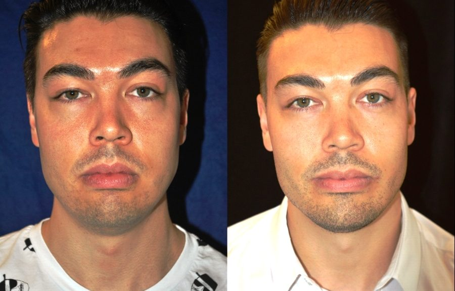 1.buccal-fat-excision-and-square-jaw-implant-front-view-900x575