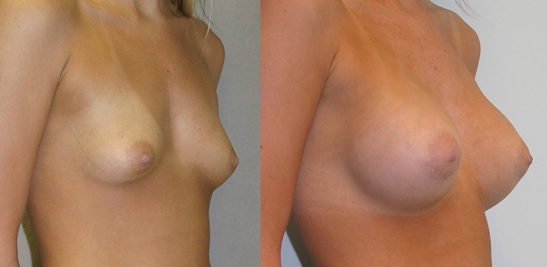 19-year-old breast augmentation 300cc Siltex periareolar incision 1 year, oblique