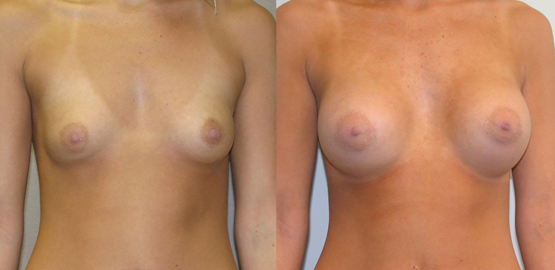19-year-old breast augmentation 300cc Siltex periareolar incision 1 year