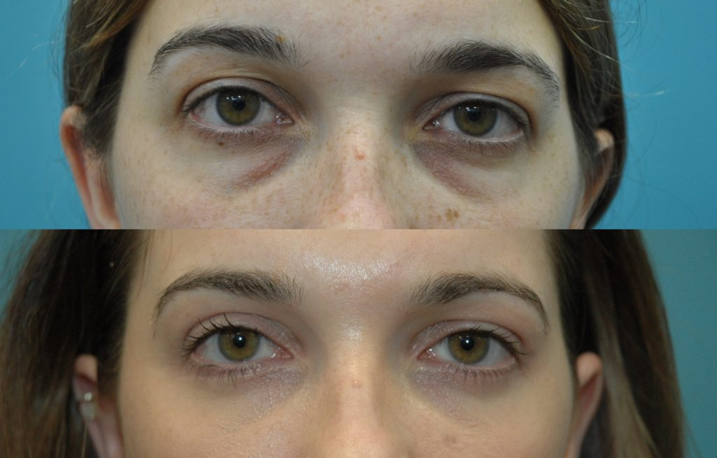 2.27-year-old-after-upper-and-lower-blepharoplasty-with-transposition-of-medial-and-middle-fat-pads.-external-approach.-Upward-gaze-1-1025x655