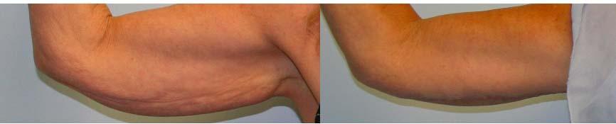 2.Brachioplasty (1)